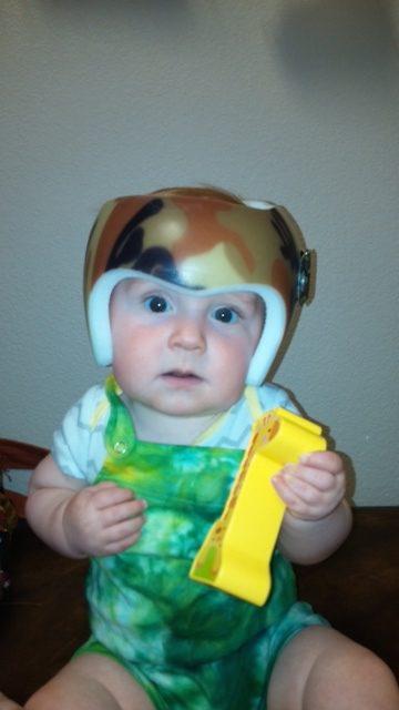 Cranial Remolding Orthoses | Spectrum Ortotics & Prosthetics