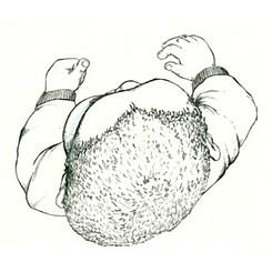 Plagiocephaly | Cranial Remolding Orthoses | Spectrum Ortotics & Prosthetics